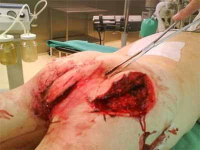 20100104_Rozlegle-rany-szarpane-posladkow-Przygotowanie-do-leczenia-operacyjnego